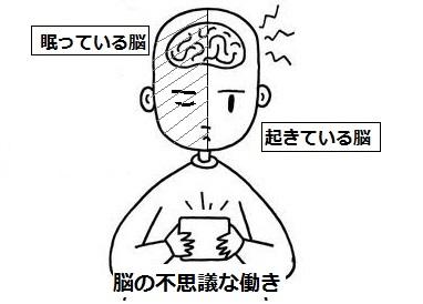 Brain029